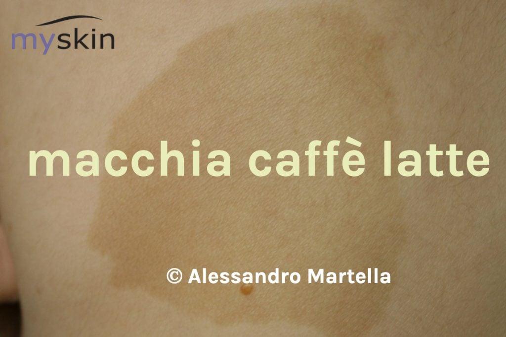 Macchia Caffè latte- Neurofibromatosi