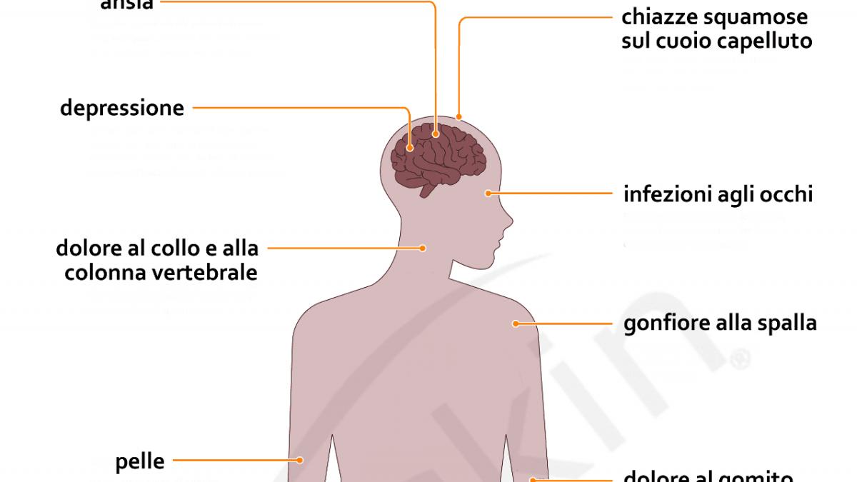 Può stressare causare dolori articolari e gonfiore, come il...